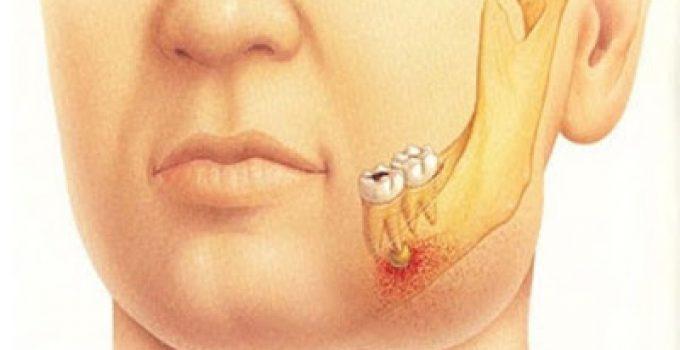 Kisah Allah Memberikan Obat Sakit Gigi pada Nabi Musa